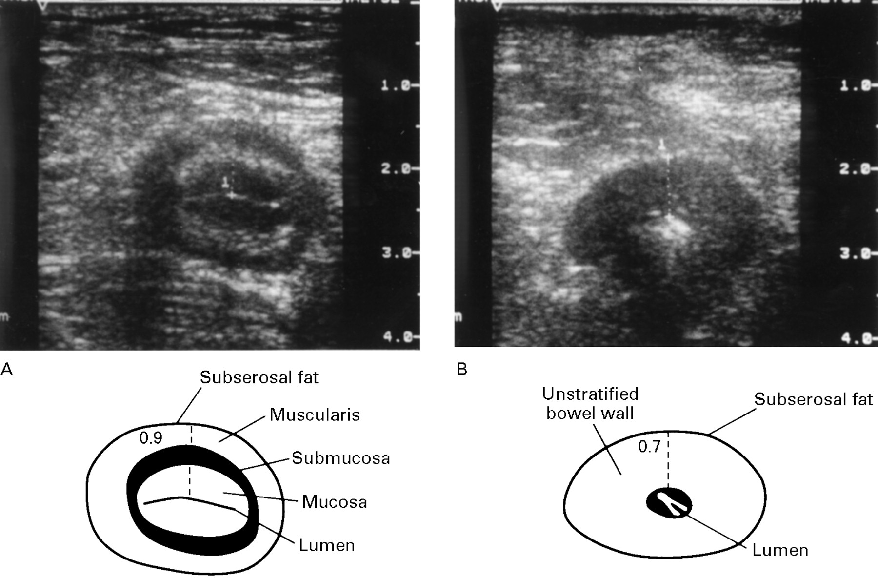 Transabdominal bowel sonography for the detection of intestinal ...