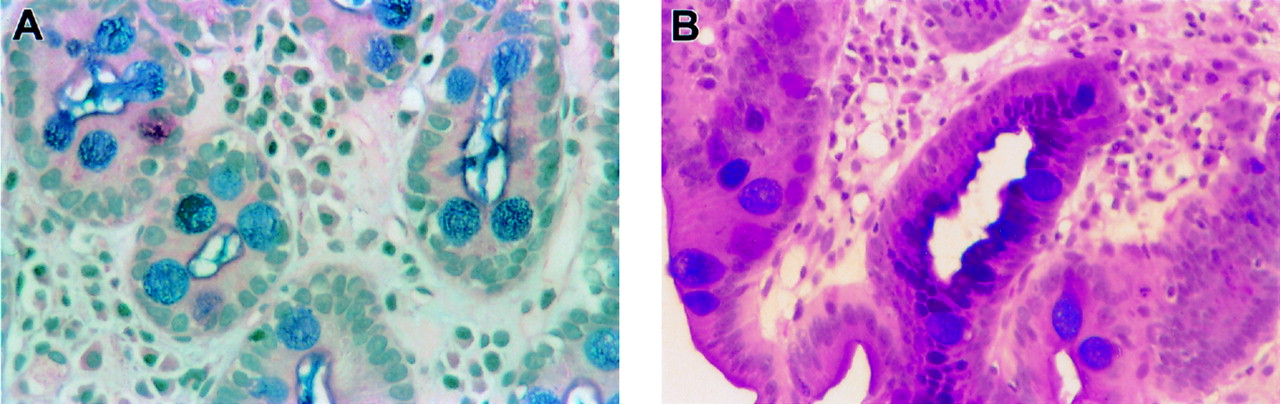 complete and incomplete intestinal metaplasia at the