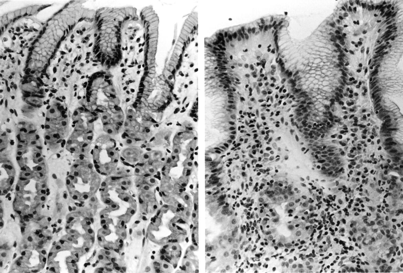 Effect of Helicobacter pylorieradication on chronic
