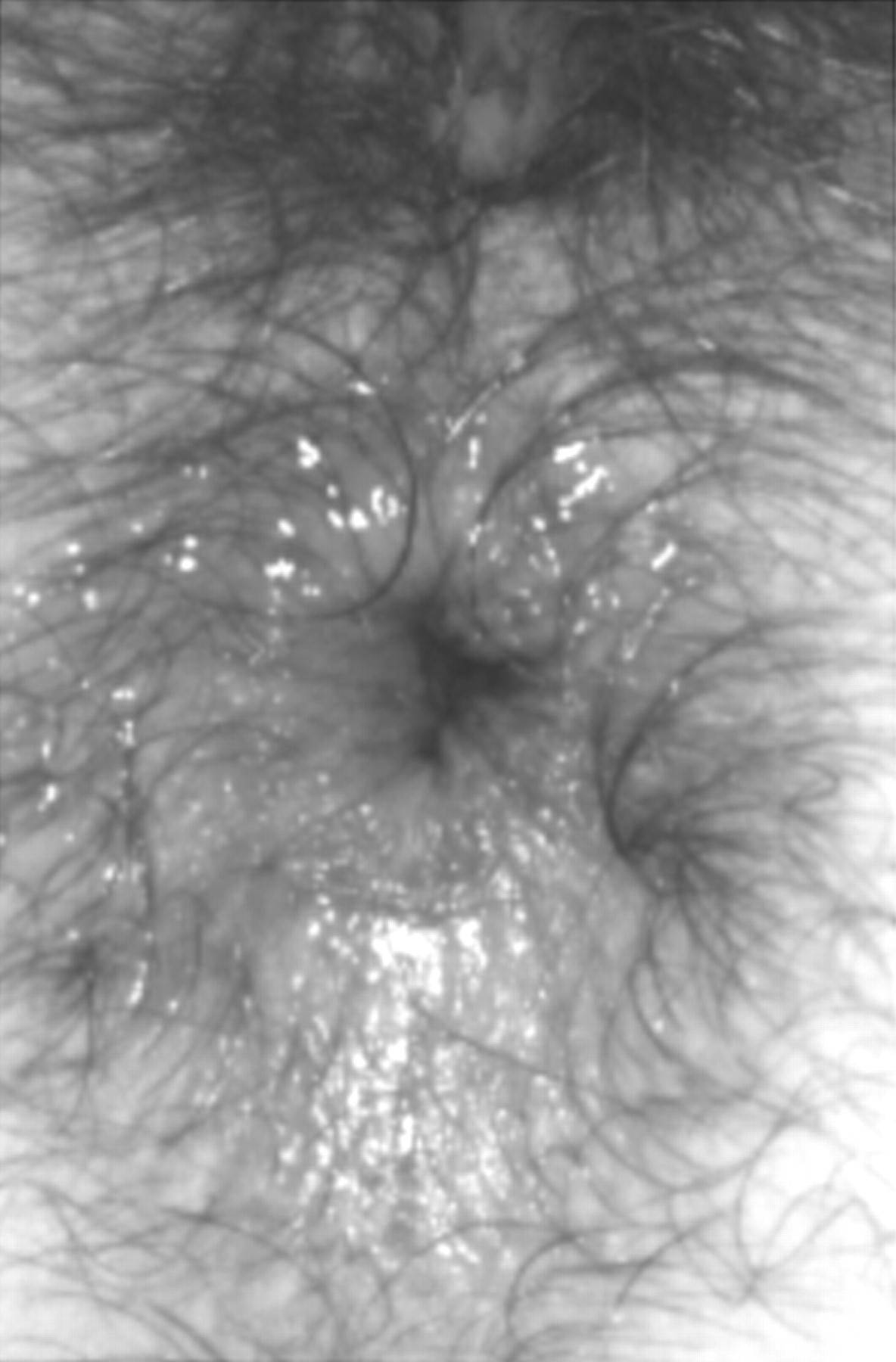 Close view of her anus