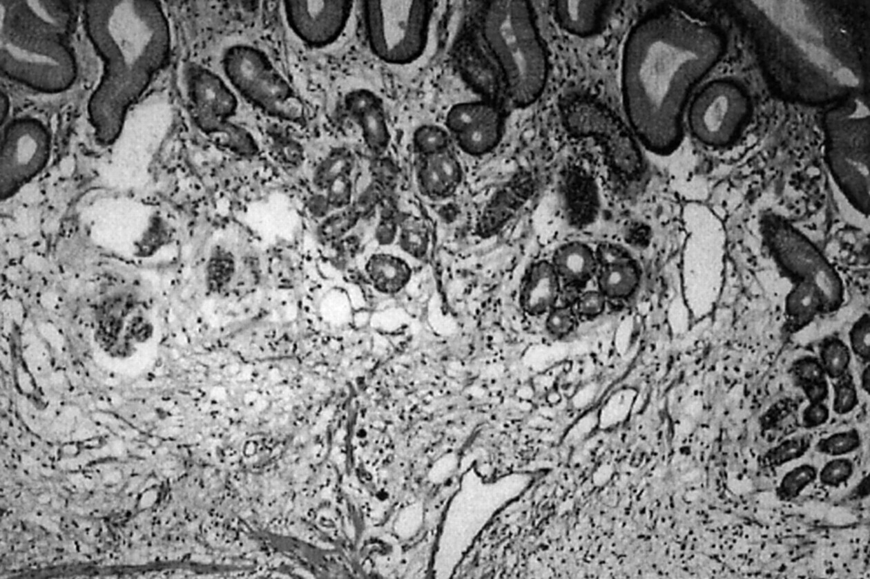 Helicobacter and gastric MALT lymphoma   Gut
