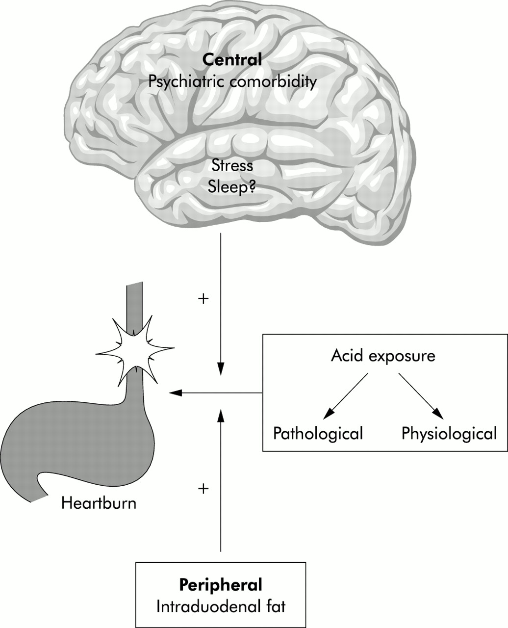Functional heartburn: the stimulus, the pain, and the brain