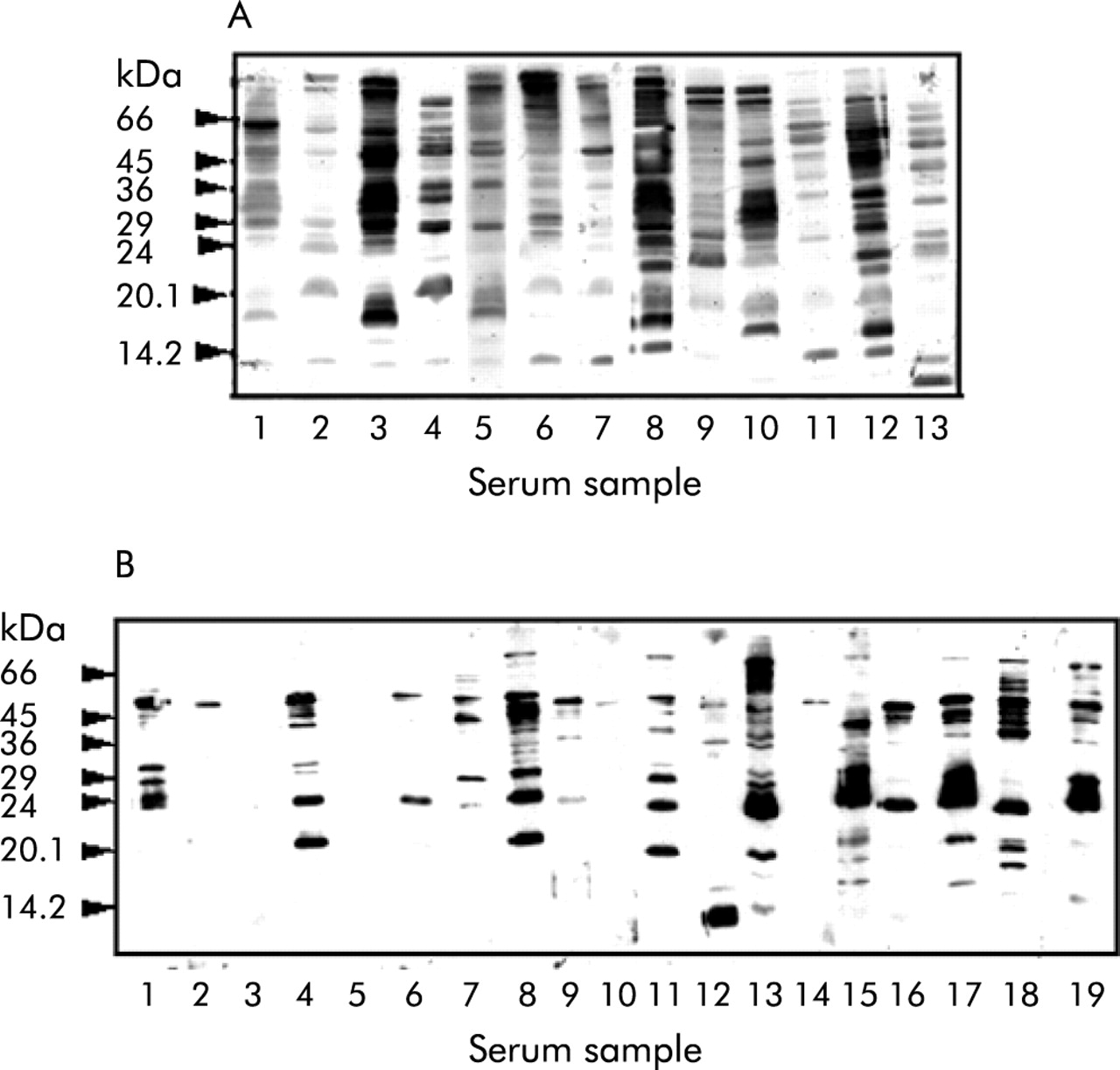 Human peripheral and gastric lymphocyte responses to