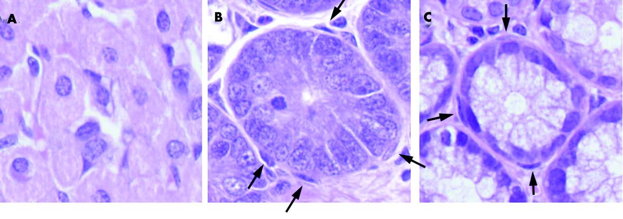 Pericryptal Fibroblast Sheath In Intestinal Metaplasia And Gastric