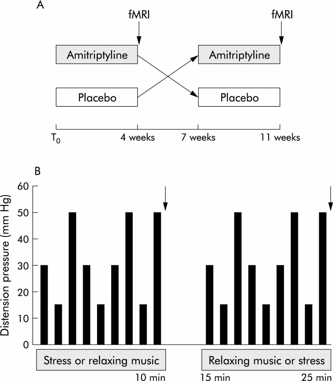 Amitriptyline Reduces Rectal Pain Related Activation Of The Anterior Alternative To Drugs As Treatments Electrical Energy Pulses Tr Download Figure