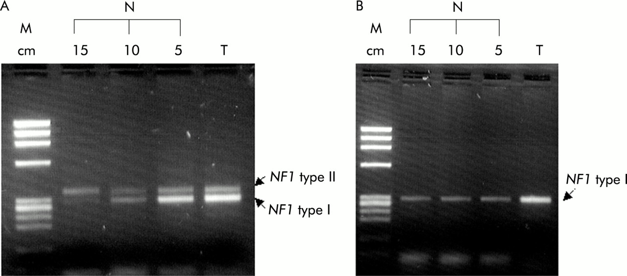 Nf1 Gene Loss Of Heterozygosity And Expression Analysis In Sporadic Colon Cancer Gut