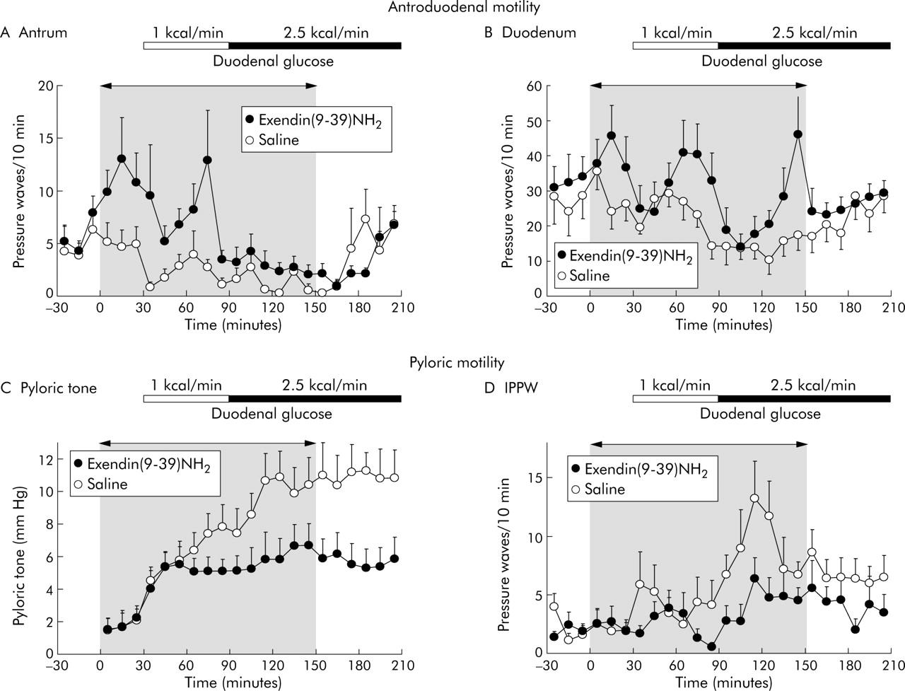 6-Hour Antroduodenal Manometry | Cedars-Sinai
