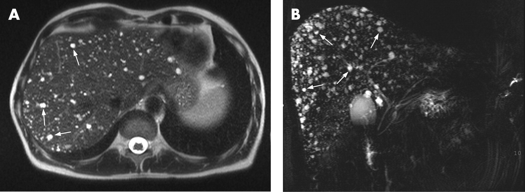 multiple cystic liver lesions on ct