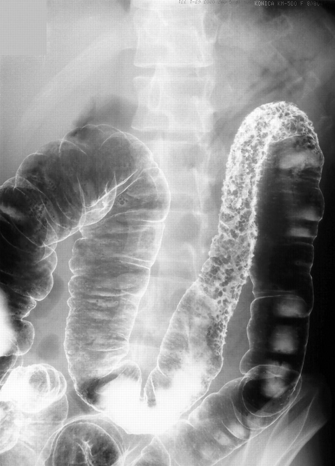 cobblestone - Humpath.com - Human pathology |Cobblestone Colon