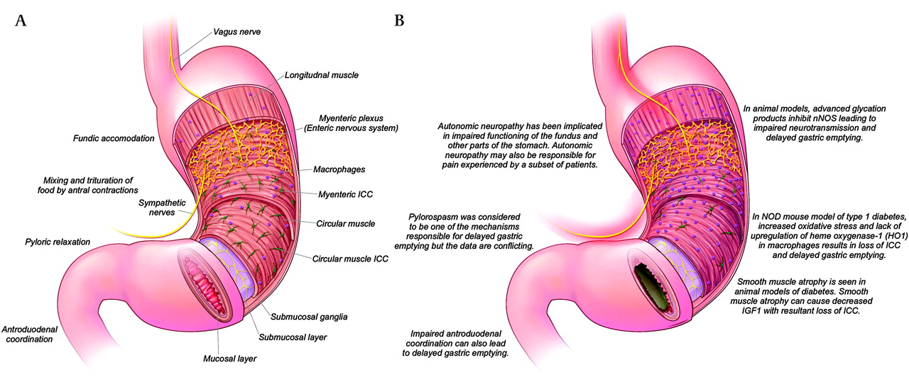 Diabetic gastroparesis: what we have learned and had to unlearn in ...