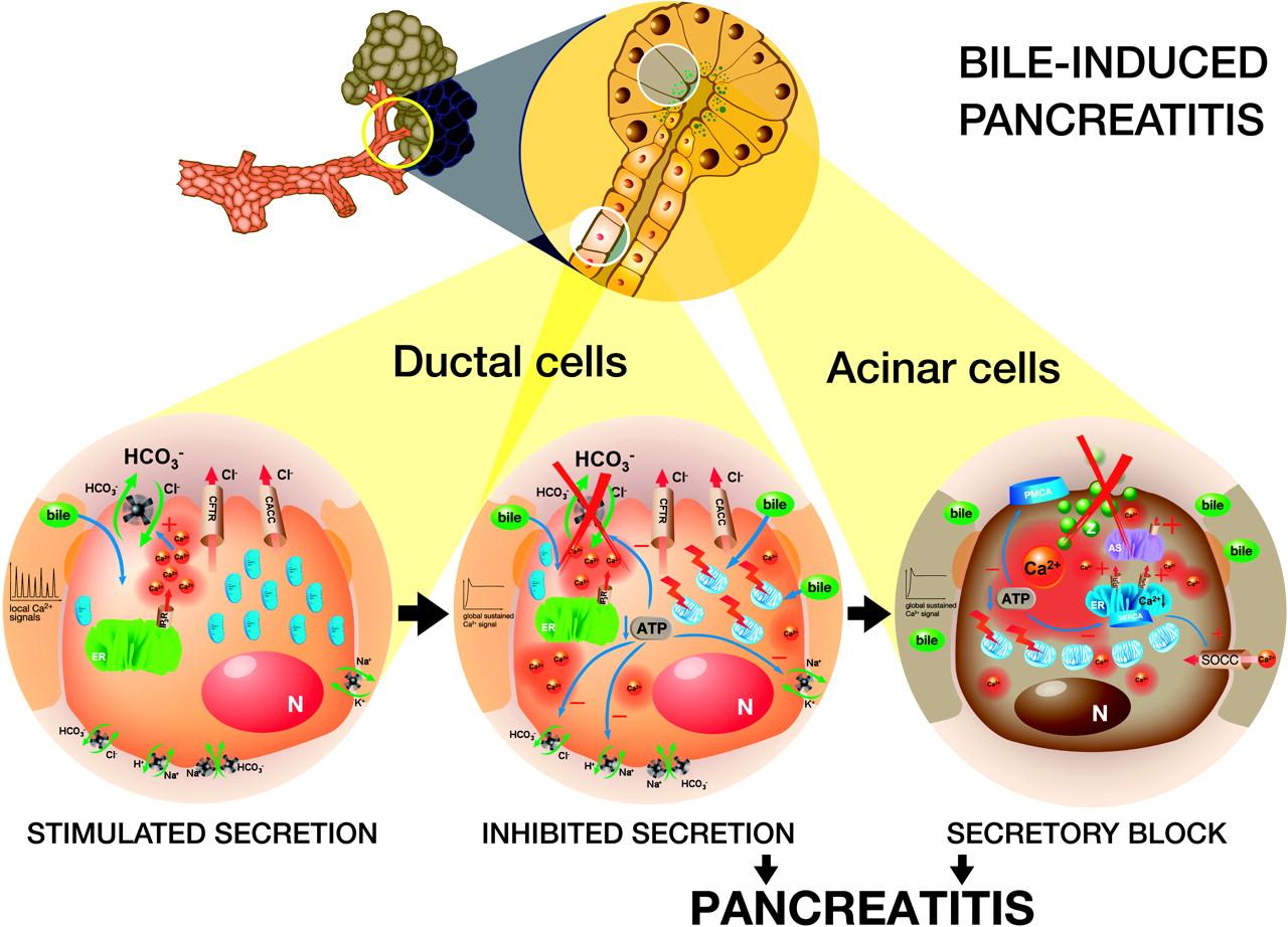 The Acinar Ductal Tango In The Pathogenesis Of Acute Pancreatitis Gut
