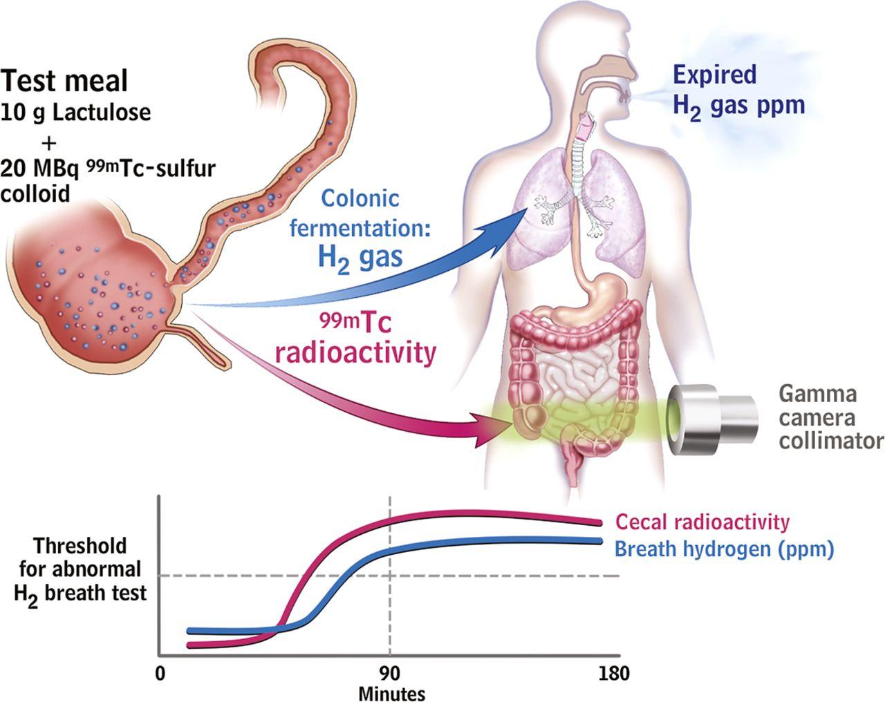 Dysbiosis in functional bowel disorders - Dysbiosis in functional bowel disorders
