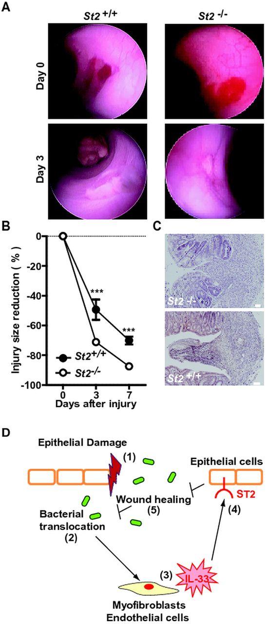 Neutralisation of the interleukin-33/ST2 pathway ameliorates