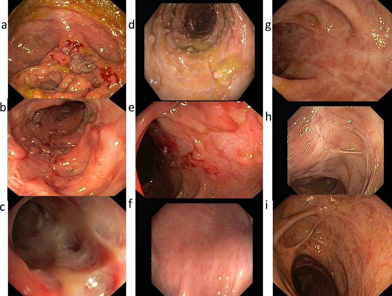 Role Of Endoscopy Cross Sectional Imaging And Biomarkers
