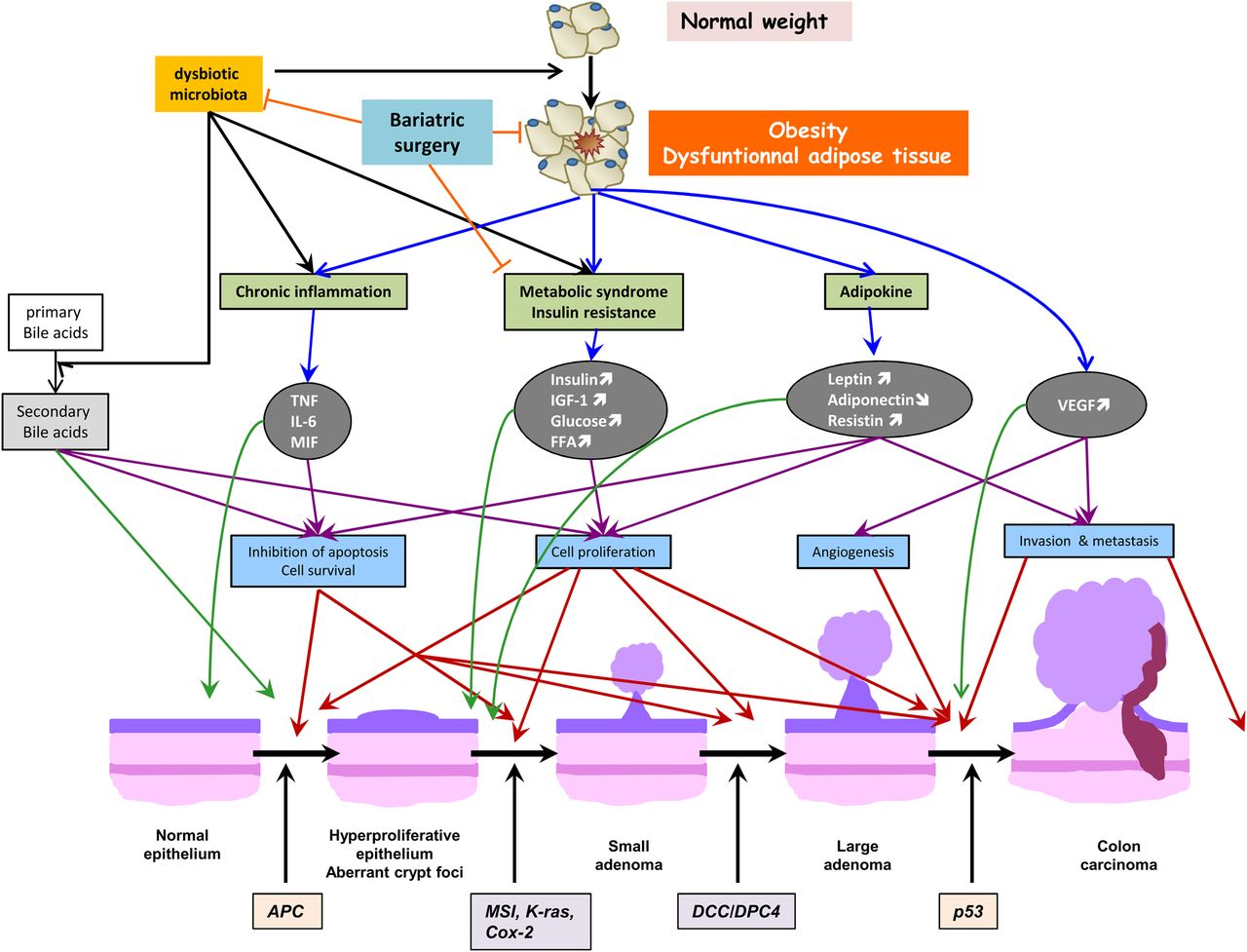 Obesity And Colorectal Cancer Gut