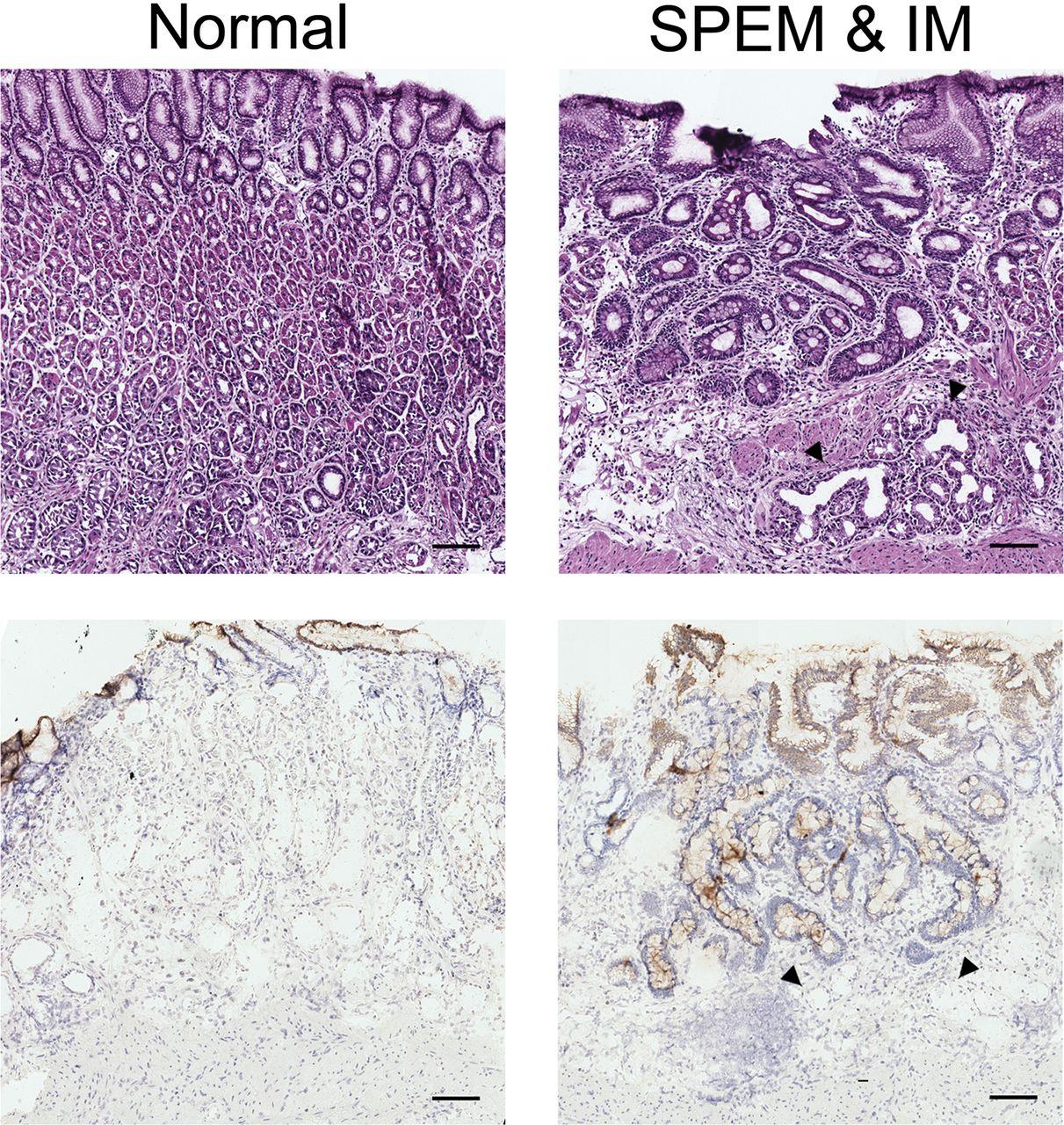 Heterogeneity In Mouse Spasmolytic Polypeptide Expressing