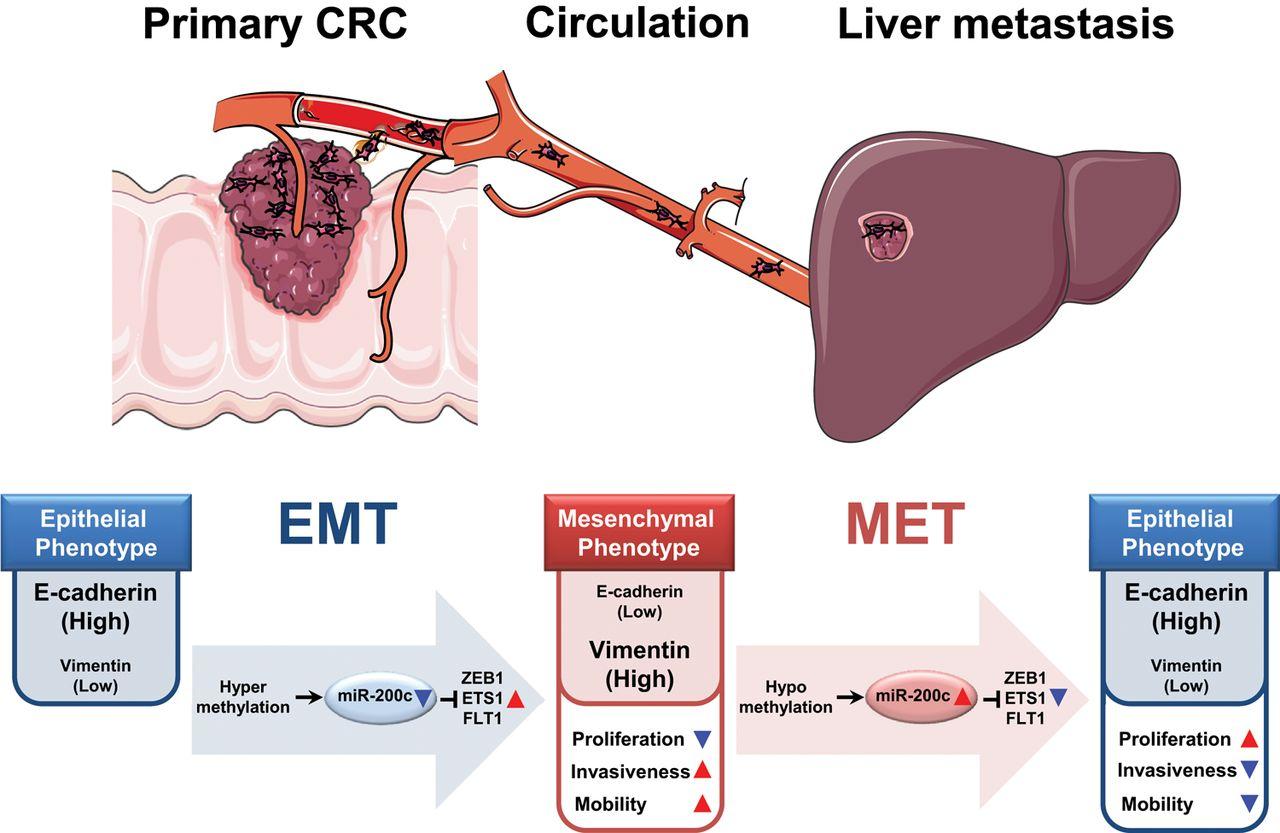 Microrna 200c Modulates Epithelial To Mesenchymal Transition Emt In Human Colorectal Cancer Metastasis Gut