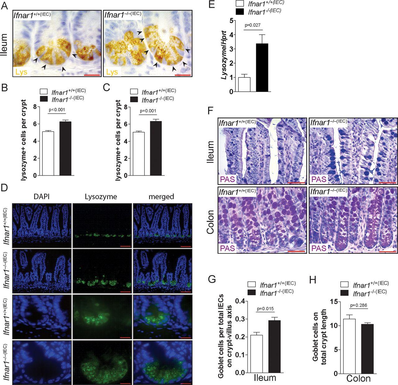 Type I interferon signalling in the intestinal epithelium