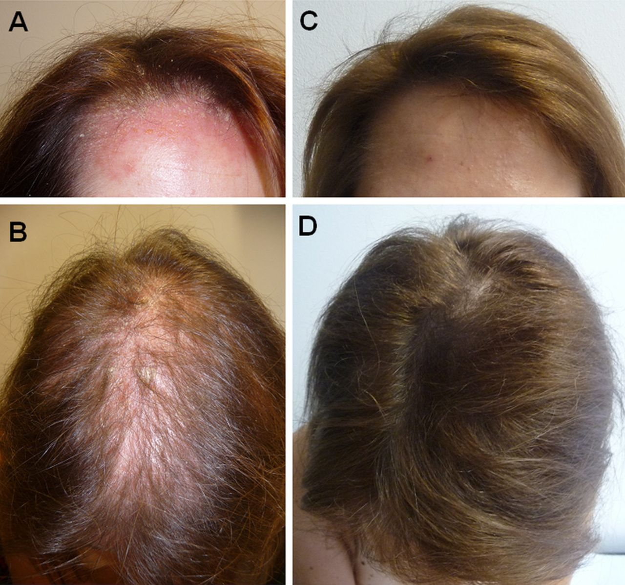 Anti Tnf Antibody Induced Psoriasiform Skin Lesions In Patients With