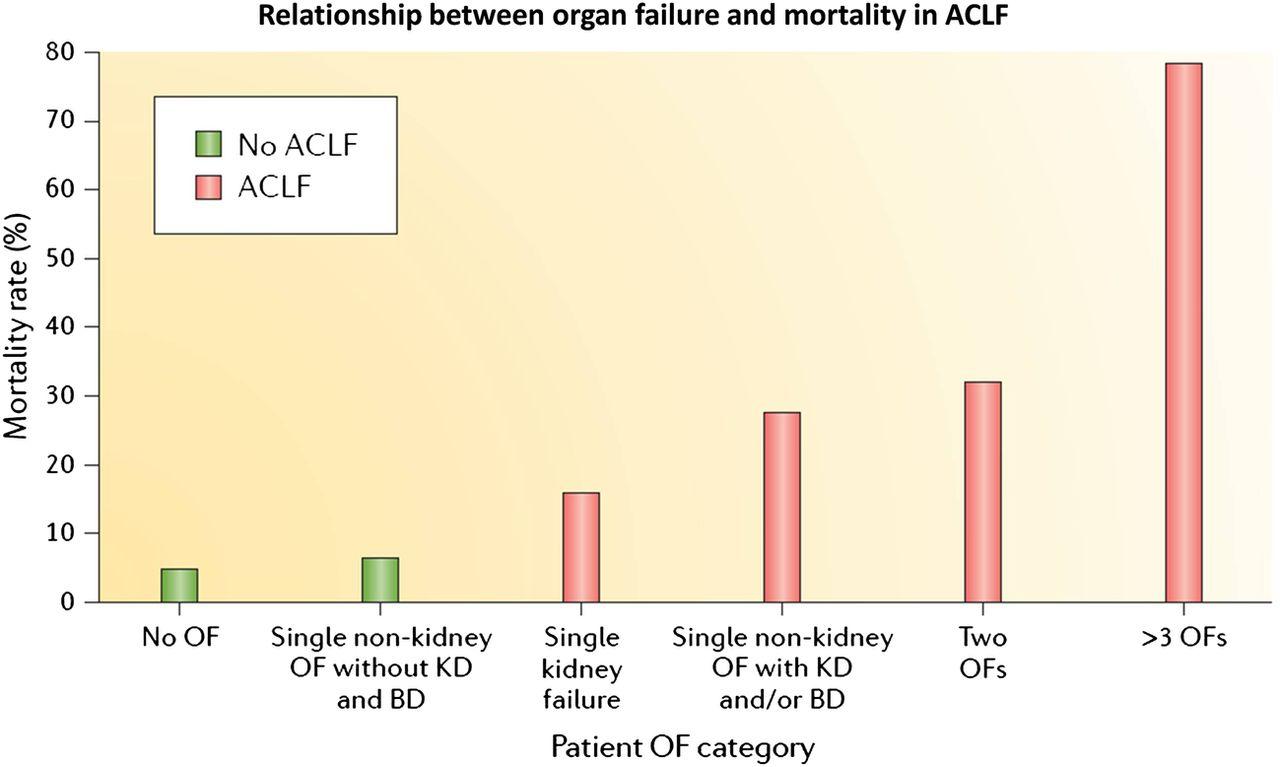 Acute On Chronic Liver Failure An Update Gut