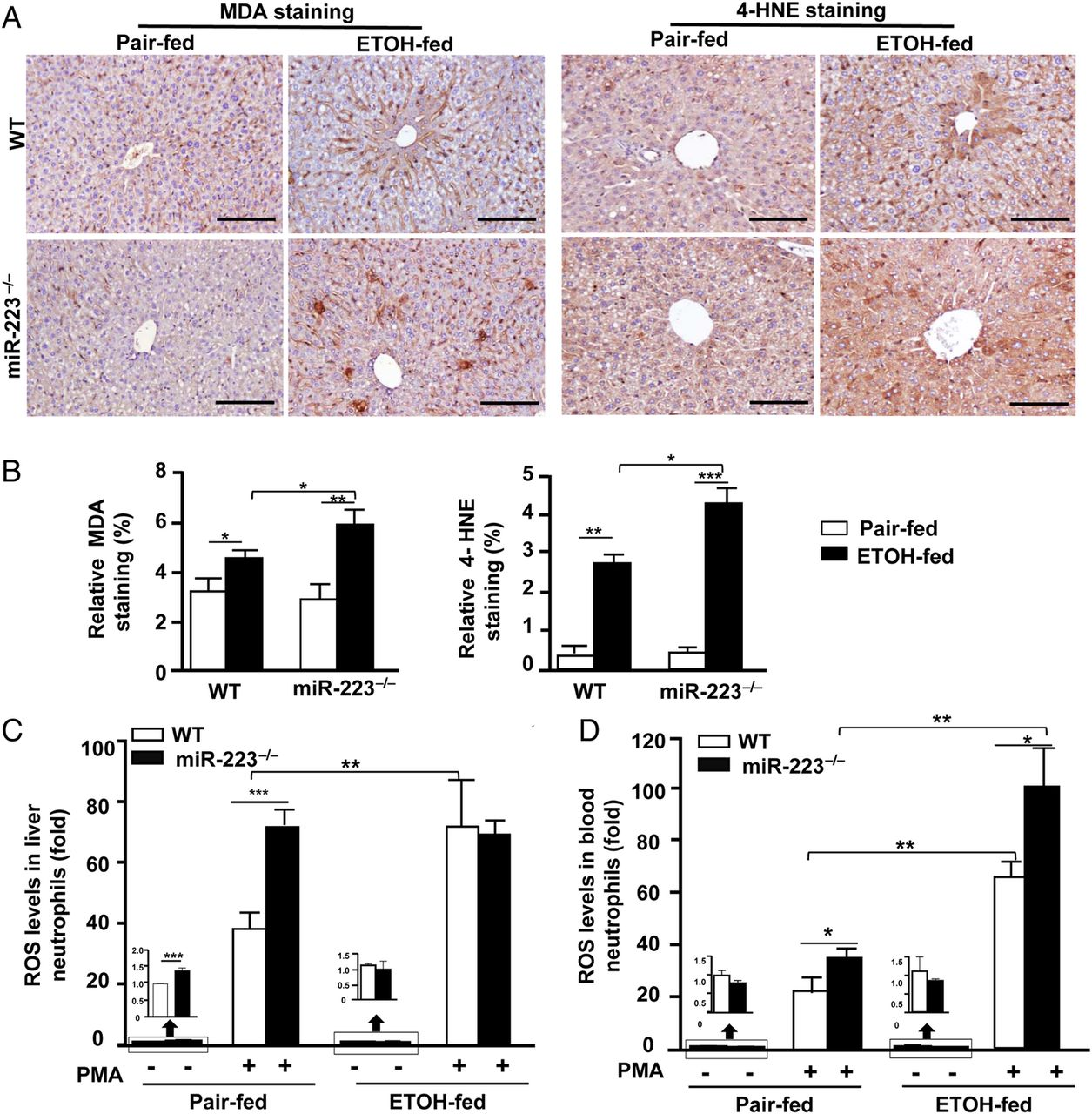 MicroRNA-223 ameliorates alcoholic liver injury by inhibiting the IL