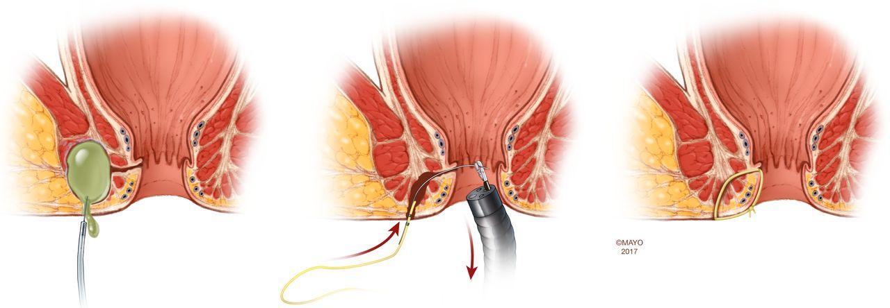 Modern management of perianal fistulas in Crohn\'s disease: future ...