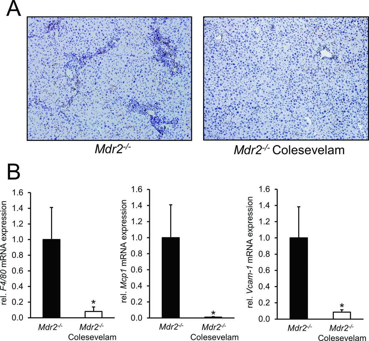 Colesevelam attenuates cholestatic liver and bile duct injury in ...
