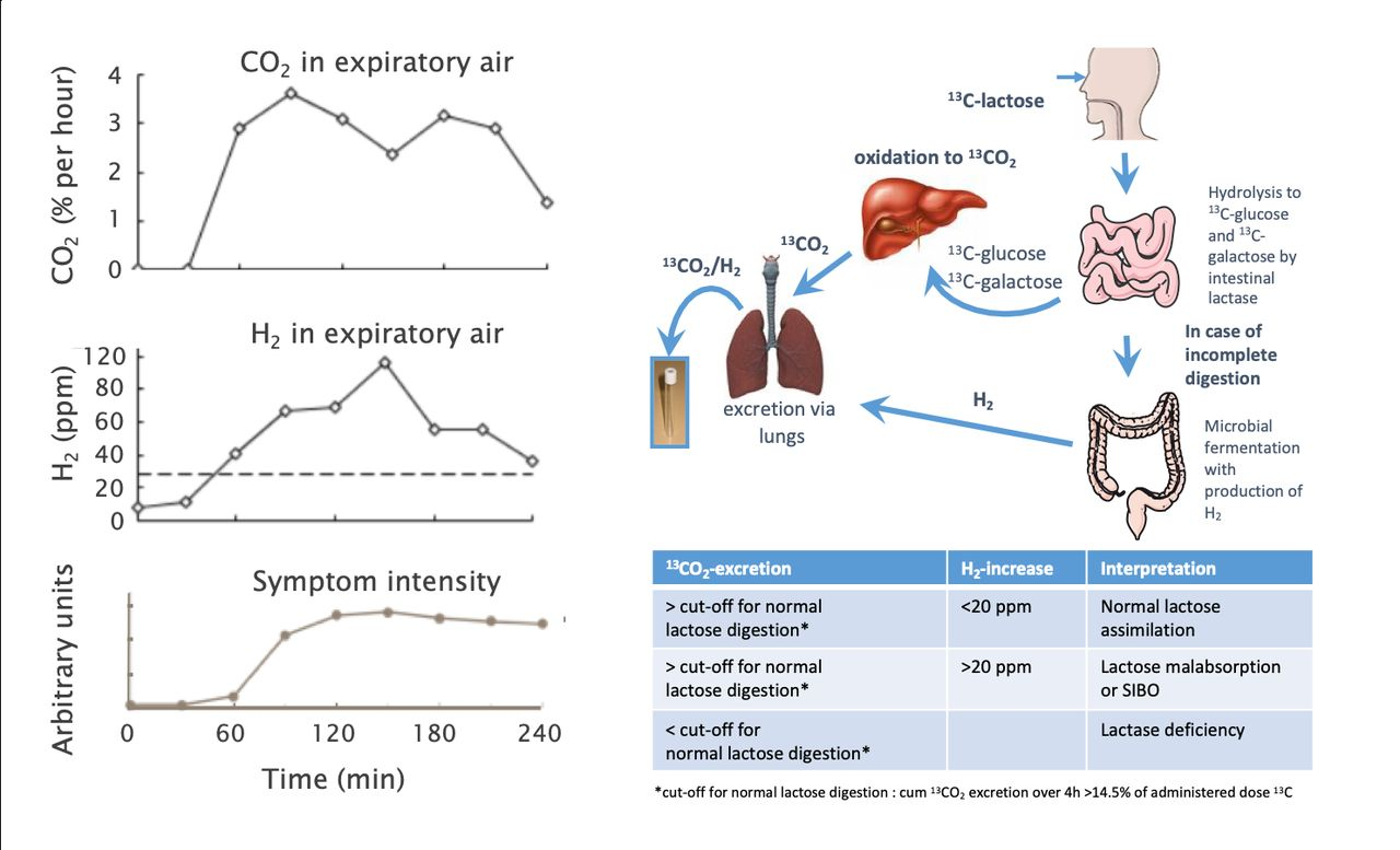 Update On Lactose Malabsorption And Intolerance Pathogenesis Diagnosis And Clinical Management Gut