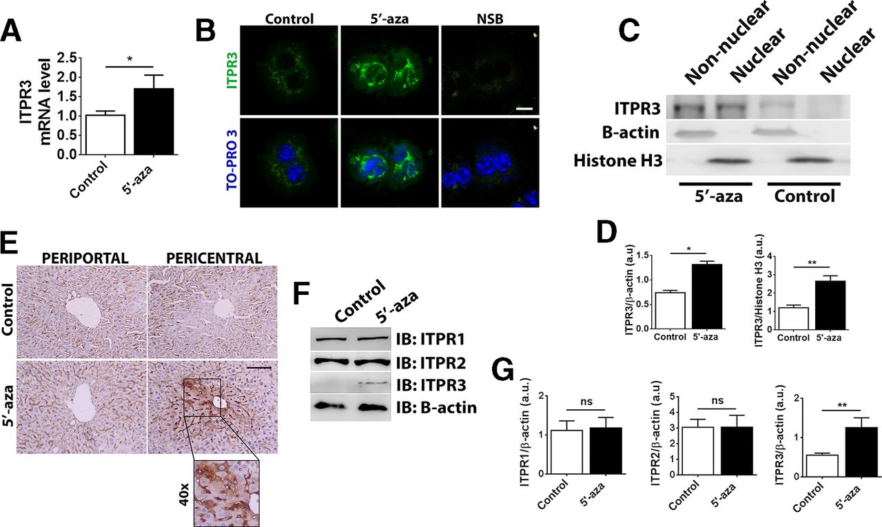 Expression of the type 3 InsP3 receptor is a final common