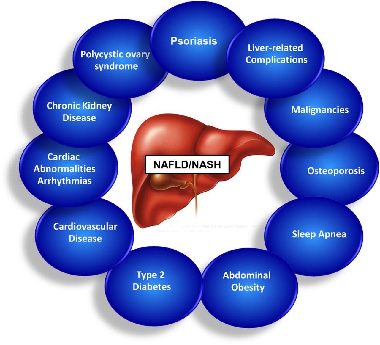 chronic liver disease and its risk factors Growing evidence suggests that nonalcoholic fatty liver disease is associated with an increased risk of cardiovascular disease beyond that conferred by established risk factors.