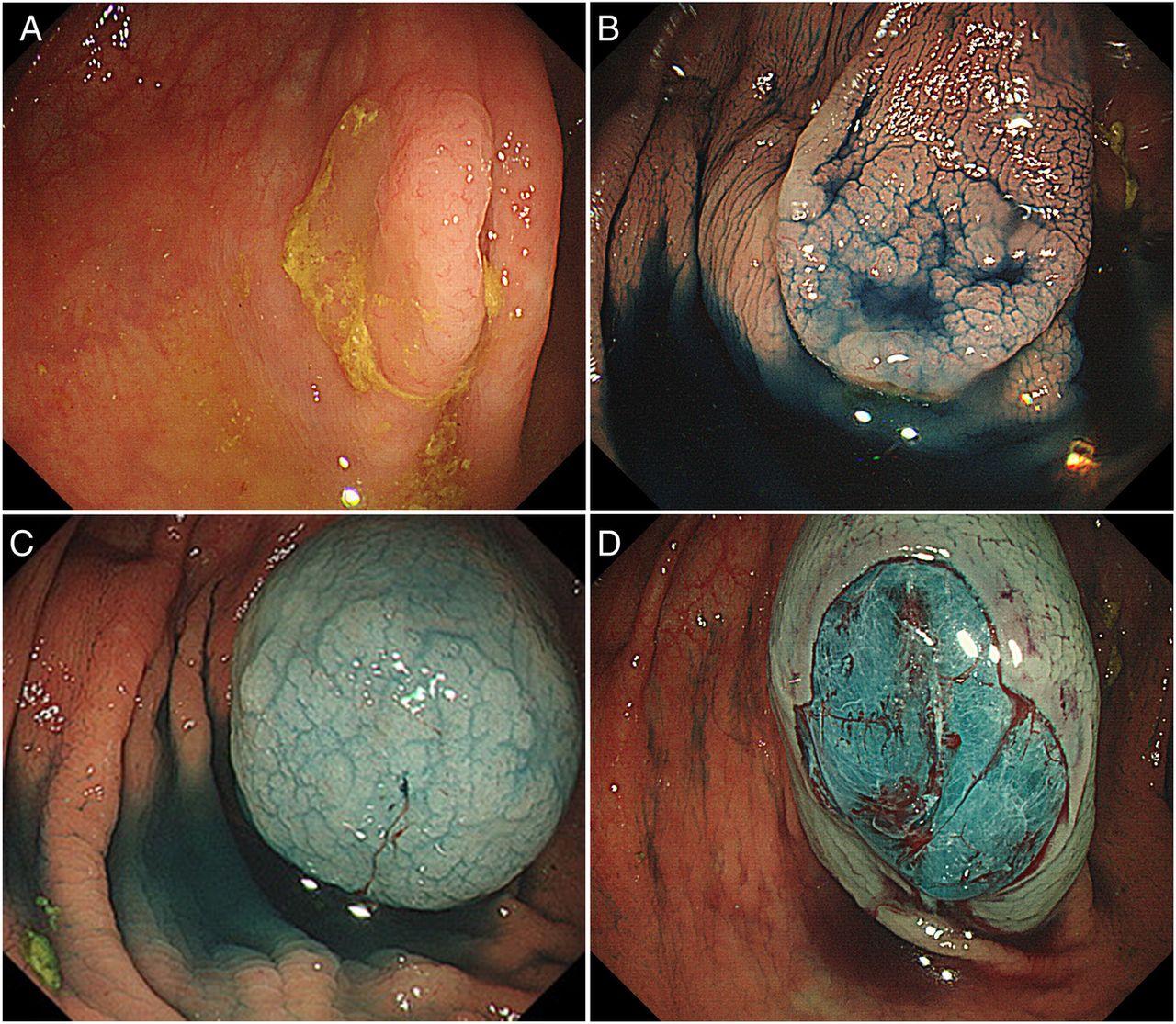 Image Result For Colon Cancer Detection