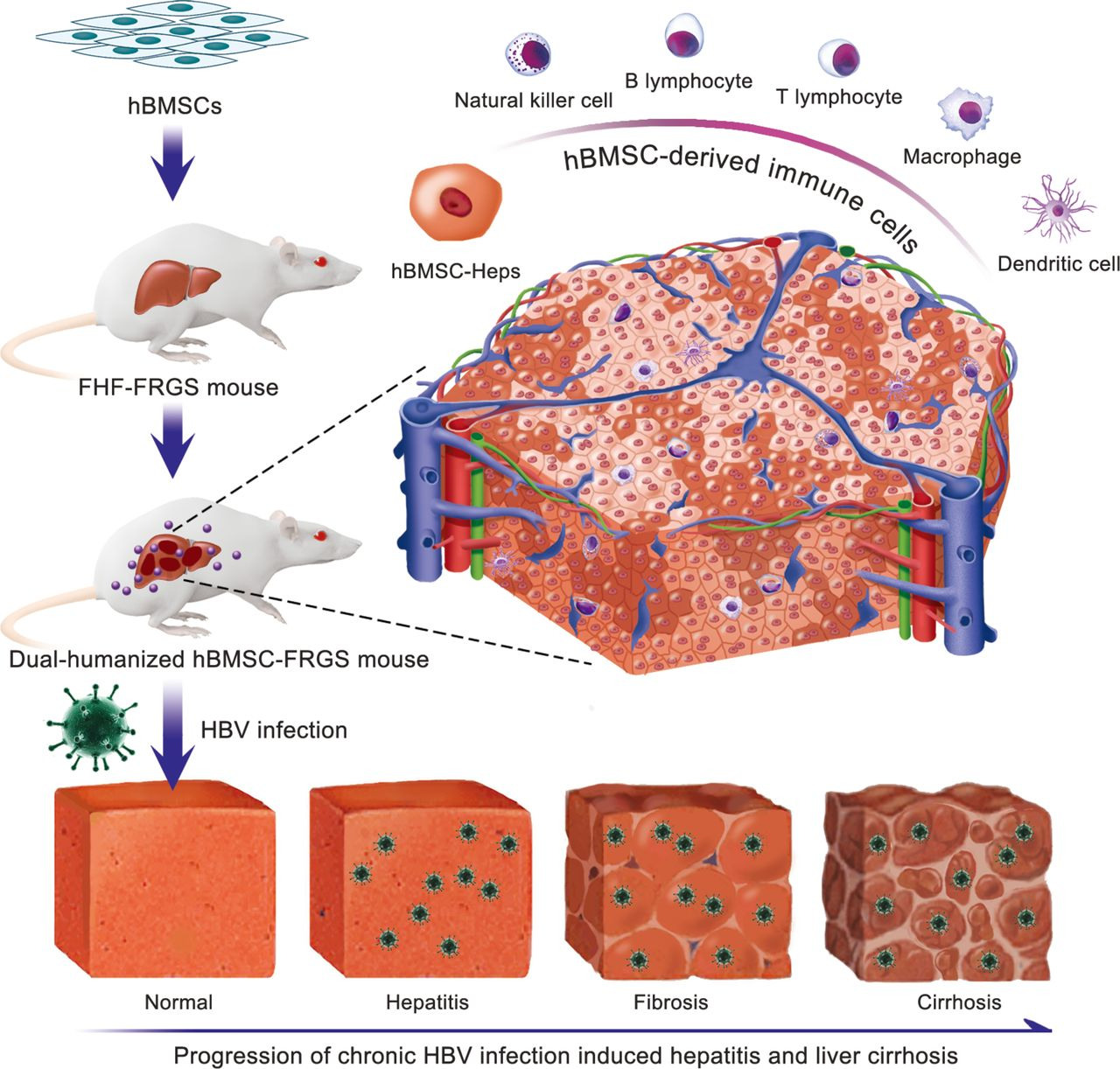HBV infection-induced liver cirrhosis development in dual